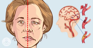 How do I recognize a stroke? Signs and symptoms